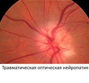 Травматичесая атрофия зрительного нерва