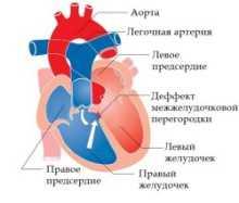 Как возникает стеноз легочной артерии у детей и взрослых