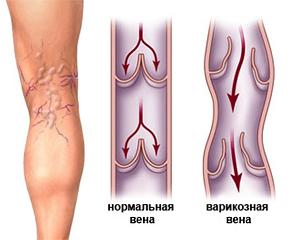 Гели и кремы при варикозе
