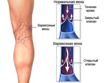 Тромбоз яремной вены лечения