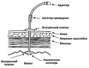 Установленная гастростома