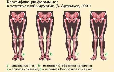 Виды кривизны ног у человека