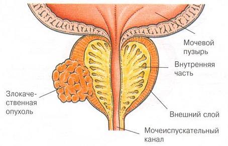 Как отличить доброкачественную от злокачественной опухоли предстательной железы