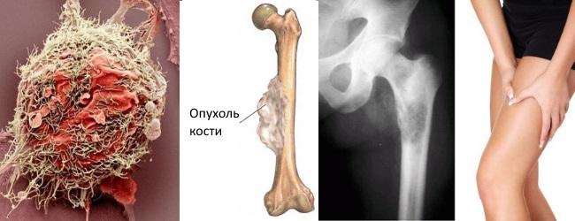 Опухоль кости злокачественная