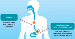 Изжога симтомы