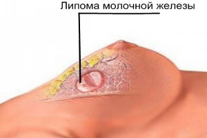 липома молочной железы фото