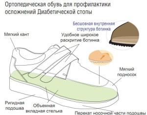 Обувь при диабетической стопе