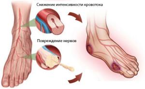 Риски при диабетической стопе