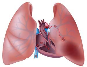 Тромбоз легочной артерии
