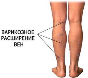 причина образования тромбов в ногах