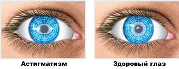 Что делать если ухудшилось зрение из за компьютера