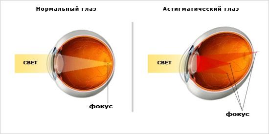 Как самому улучшить зрение без очков и операции секретный метод