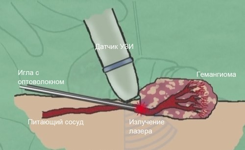 Лечение гемангиомы лазером