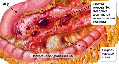 Структура поджелудочной железы