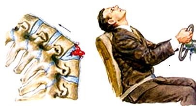 Остеохондроз левой стороны лечение