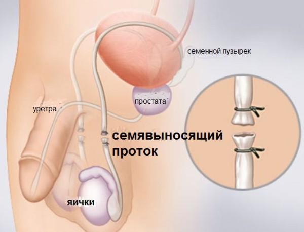 Методика вазэктомии