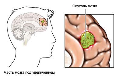 липома левой части головного мозга крови