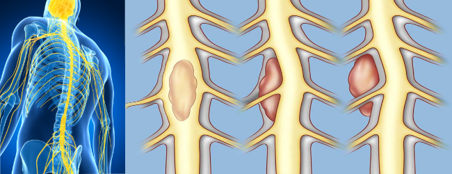 Опухоли спинного мозга и позвоночника у детей