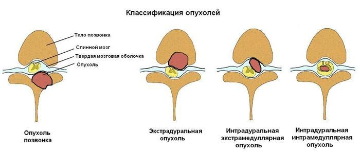 Разновидности опухолей