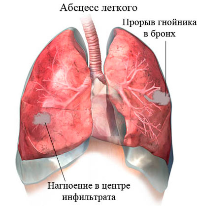 Схема лечения абсцесса