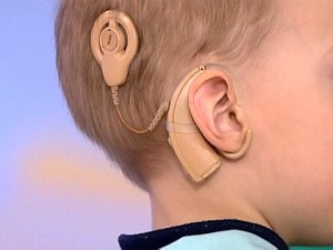 Ребенок с имплантантом