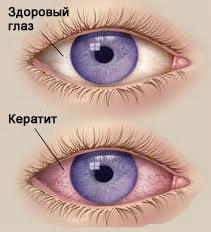 Симптомы и лечение кератита глаза