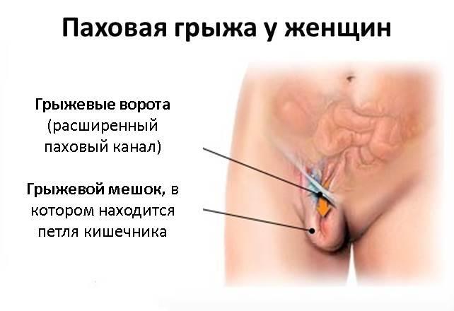 poyavilas-shishka-vo-vlagalishe