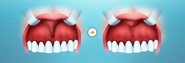 Подрезание короткой уздечки верхней губы