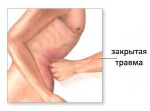 Закрытая травма