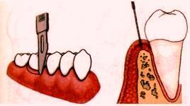 Операция открытого лоскутного кюретажа пародонтальных карманов