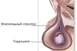 Водянка яичка лечение в домашних условиях
