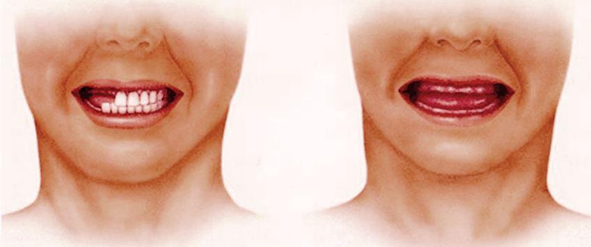 Адентия - причины отсутствия зубов