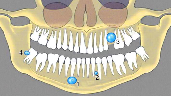 Расположение кисты зуба