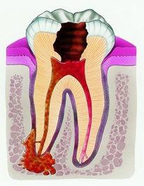 Как выглядит кисты зуба?