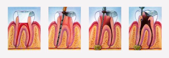 Лечение гранулемы зуба в домашних условиях