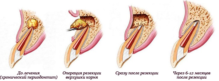 Лечение кисты зуба - резекция