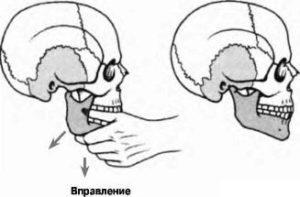 Лечение вывиха челюсти - вправление