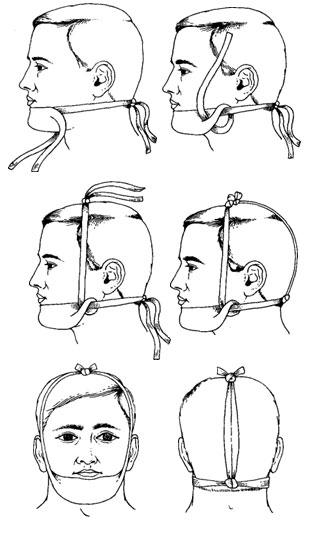 Вправление вывиха нижней челюсти