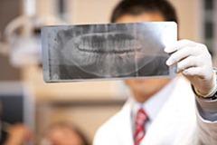 Лечение переломов верхней челюсти