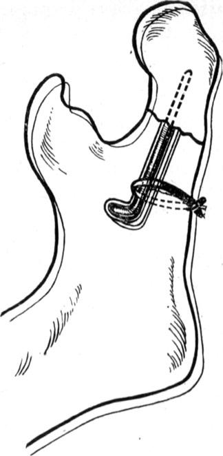 Внутрикостный остеосинтез при переломе верхней челюсти