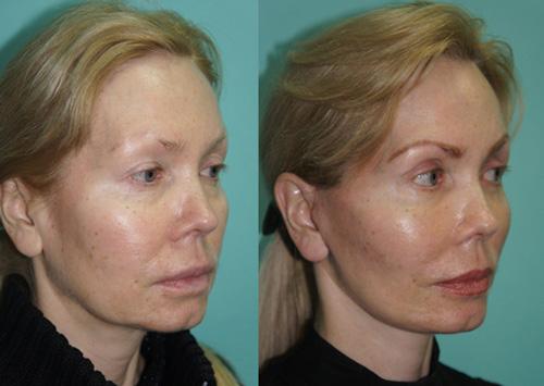Фото до и после эндоскопического лифтинга лица