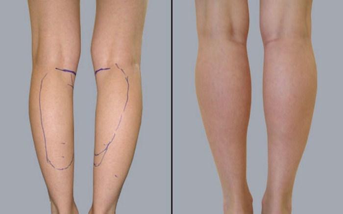 Результат коррекции голеней методом круропластики
