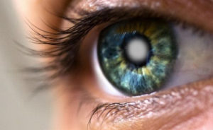Квота на бесплатную операцию по поводу катаракты глаза