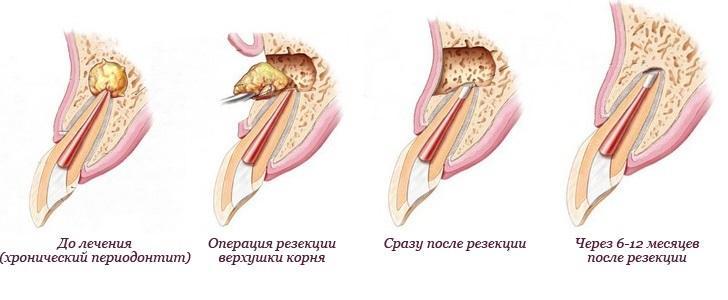 Операция резекции верхушки корня зуба