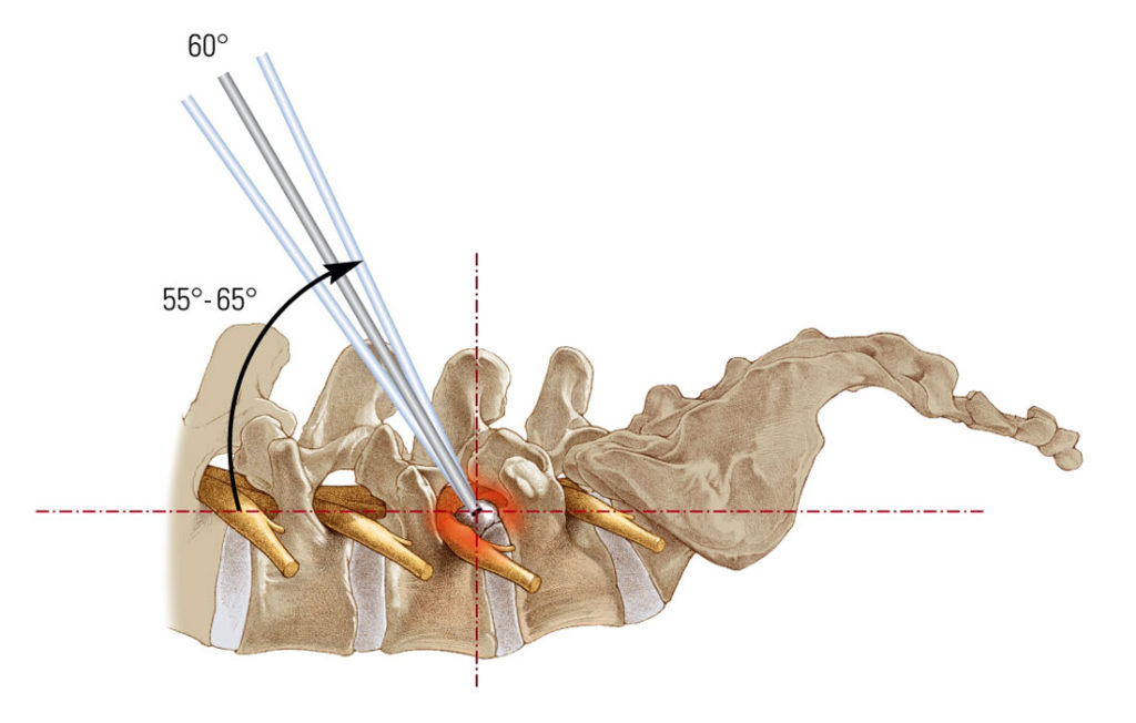 Эндоскопическая дискэктомия при грыже диска