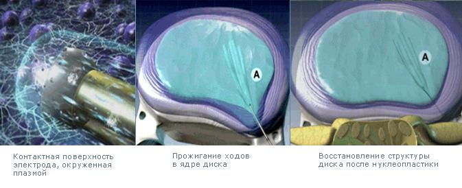 Холодноплазменная коблация (нуклеопластика)