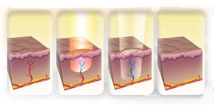 Лазерное удаление сосудистой сеточки