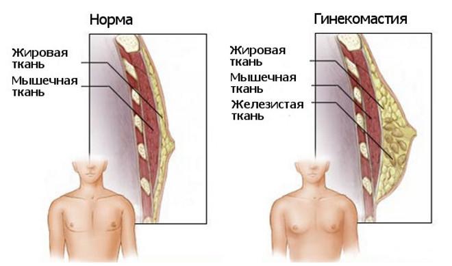 Гинекомастия - причины, симптомы и лечение