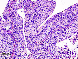 Карцинома - рак мочевого пузыря