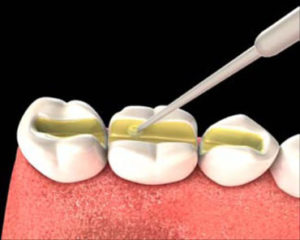 Шинирование зубов стекловолокном